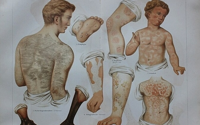 Set of 20 coloured medical prints from Meyers Konversations-lexikon, 5th edition, Germany 1894. 15 Large...